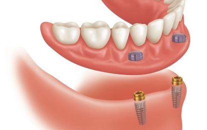 Dental Implantation in Toronto