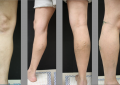 Incredible Veins: The Finest Clinic for Sclerotherapy Vein Treatment in Encino CA