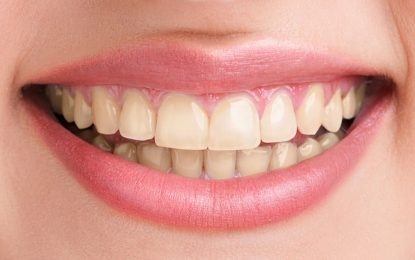 How to Enjoy Cheaper Professional Teeth Whitening Services
