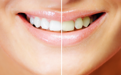 Advantages of Laser Gum Treatments