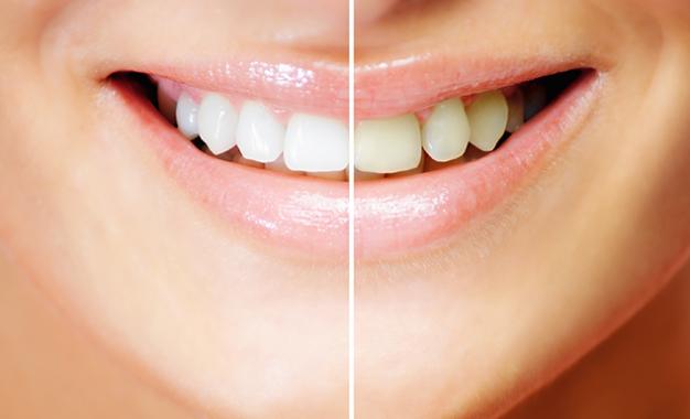 Advantages of Laser Gum Treatments