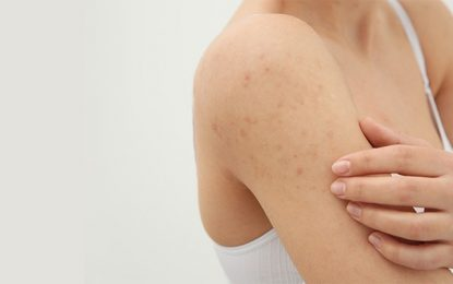 What are the causes of acne on your body?