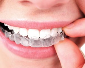 Straightening Your Smile Does Not Have to Be Difficult