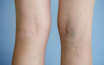 Is varicose vein painful? How to treat it?