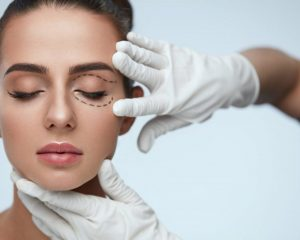 Why Has Blepharoplasty become So Popular in 2018?