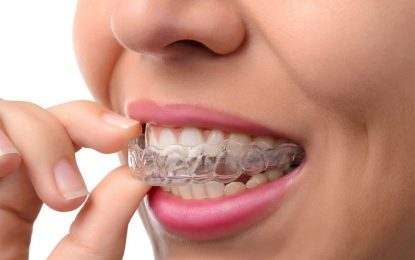 What Causes An Overbite Or Underbite And How An Orthodontist Can Help