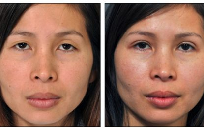 Cheek Augmentation Can Make You look Much Younger