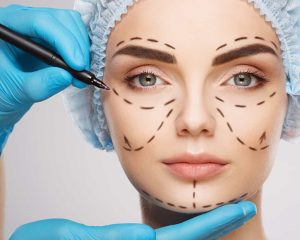 What Is Medical Epicanthoplasty