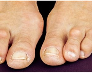 Hammer Toes – Causes, Symptoms, Diagnosis, Treatment and Prevention